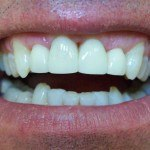 Dr. Vanek Dentistry after
