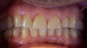teeth prior to having veneers attached