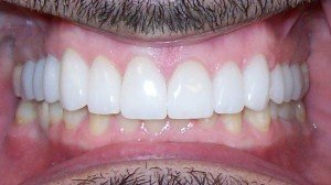 teeth with veneers attached