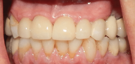 patients teeth after crowns