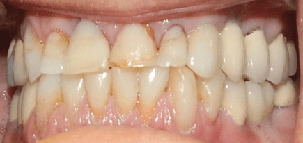 patients teeth before crowns