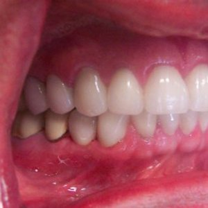missing tooth fixed by implant