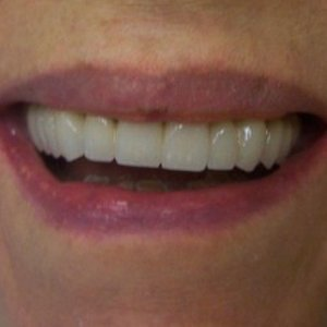 complete smile makeover