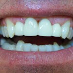 teeth after veneers