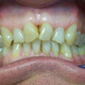 teeth before veneers