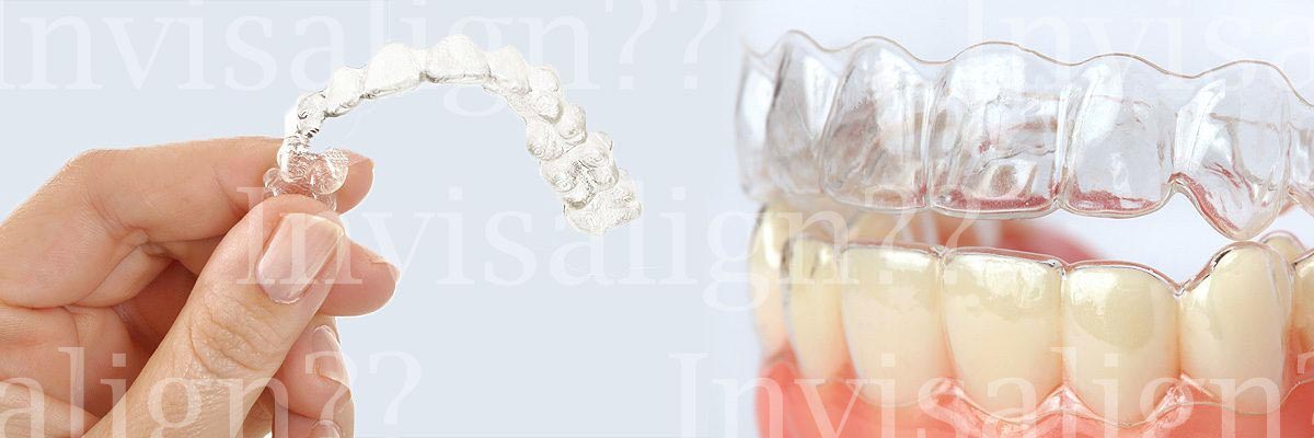 Costa Mesa Does Invisalign® Really Work?