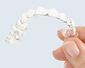 7 Things Parents Need to Know About Invisalign Teen