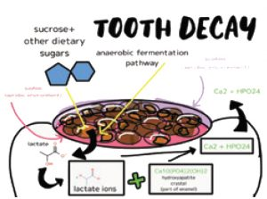 chemistry of tooth decay