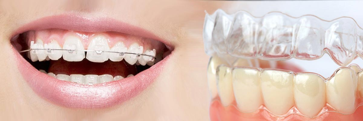 Costa Mesa Which is Better Invisalign or Braces